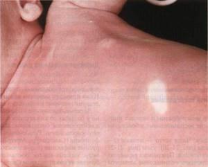 Белое пятно у новорожденного на коже