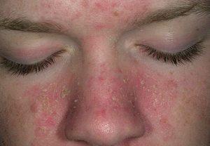 Лечение дерматита у взрослых - аллергического, себорейного