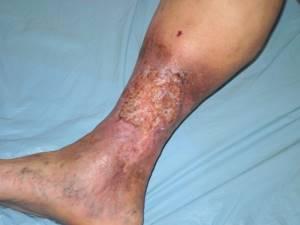 Пятна на ногах при сахарном диабете
