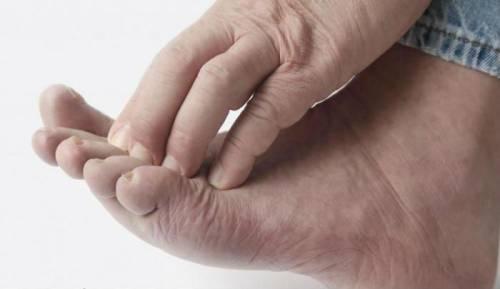 Лечение экземы на ногах: сухой и варикозной