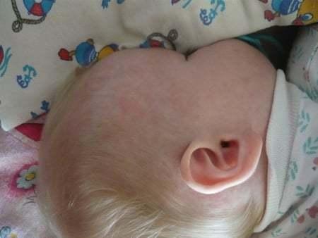 Появились красные пятна на голове у ребенка или младенца, чешутся и шелушатся