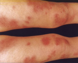 Узловая эритема нижних конечностей. Лечение, фото