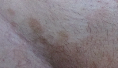 Бордовые пятна на коже