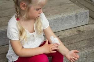 Нейродермит у детей и грудничков: причины, симптомы и лечение, диета
