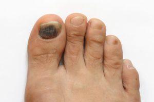 Пятна на ногтях ног