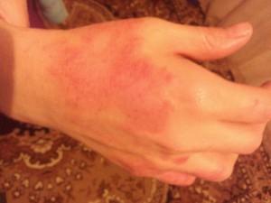 Пятна на запястьях рук