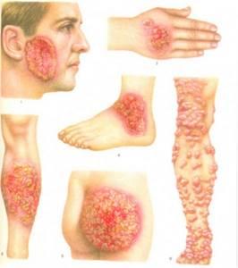 Пятна на теле грибок