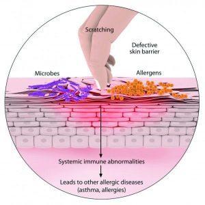 Медицина и атопический дерматит