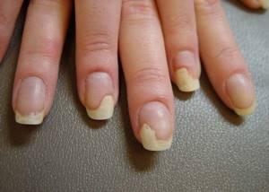 Желтые пятна на ногтях рук и ног