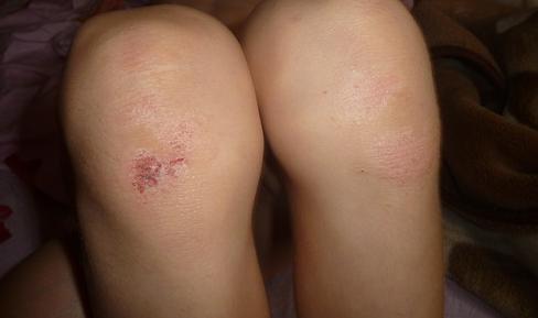Пятна на коже колен