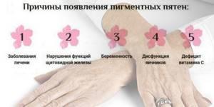 Старческие пятна на коже