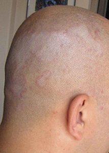 Народное лечение дерматита: себорейного, аллергического, перорального