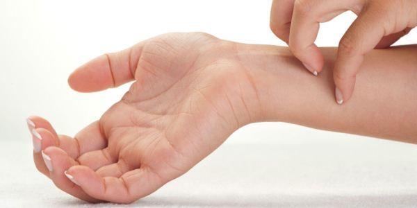 Подкожные пятна на теле, ногах и руках