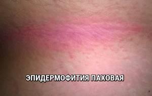 Два красных пятна на теле