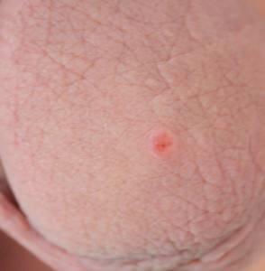 Красные пятна на головке полового члена у мужчин