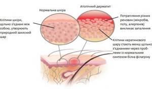 Виды атопического дерматита