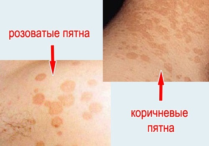 Розовые пятна на теле, которые не чешутся и шелушатся на коже, на ногах, на руках
