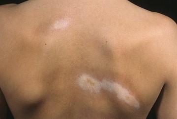 Бляшечная склеродермия. Фото, причины, симптомы, лечение