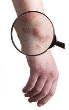 Лечение дерматита на ногах и руках