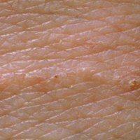 Везикула на коже и слизистых оболочках