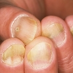 Обзор методов лечения псориаза
