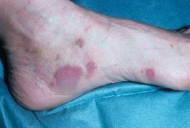 Фиолетовые пятна на ногах и руках