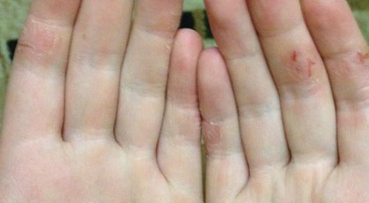 Пятна на подушечках пальцев
