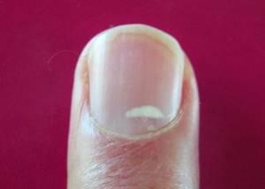 Пятна на ногтях рук