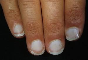 Белые пятна под ногтями и на ногтях рук