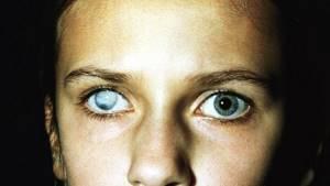 Пятно на радужке глаза