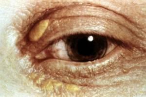 Пятна на веках глаз