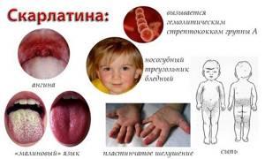 Скарлатина у детей. Начальная стадия. Фото