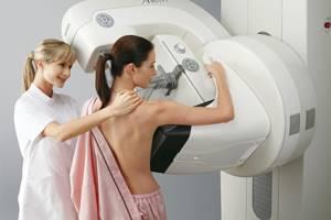 Мастопатия при климаксе : причины, симптомы, диагностика, лечение