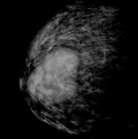 Гамартома молочной железы: причины, симптомы, диагностика и лечение