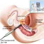 ДГПЖ 2 степени — что значит этот диагноз