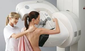 Что такое люминальный рак молочной железы, методы лечения, прогноз выживаемости