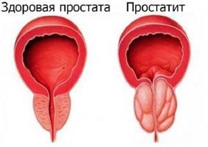 УЗИ предстательной железы: подготовка, как проводится, расшифровка результатов