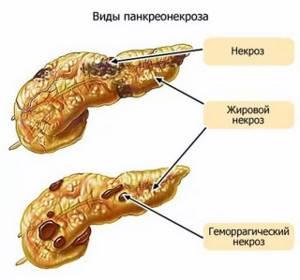 Воспаление поджелудочной железы у ребенка: симптомы и лечение панкреатита у детей