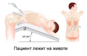 Воспаление надпочечников: симптомы и лечение, причины