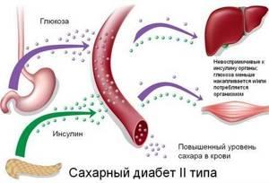 Сахарный диабет: симптомы и лечение