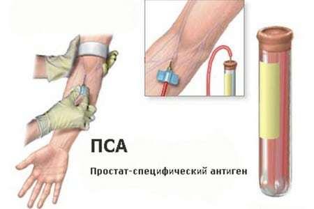 Подготовка к анализу ПСА: как правильно сдать кровь на ПСА общий и свободный, расшифровка результатов