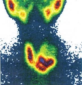 Сцинтиграфия щитовидной железы: что это такое и как проводится
