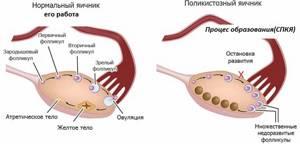 Демодуляция яичников: что это такое, как проводится