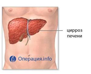 Пересадка (трансплантация) печени: показания, как происходит