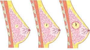 Фиброаденома молочной железы: что это, симптомы, лечение и операция по удалению