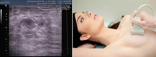 Нелактационный мастит - причины, симптомы, диагностика и лечение