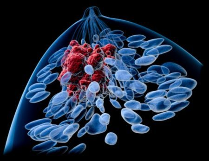 Метастазы при раке предстательной железы: симптомы, локализация, лечение, прогноз