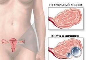 Резекция яичника: виды, реабилитация, последствия, беременность после