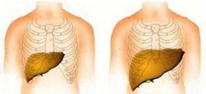 Гепатомегалия: что это такое, симптомы, как лечить
