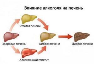 Алкоголь и печень, сколько можно употреблять